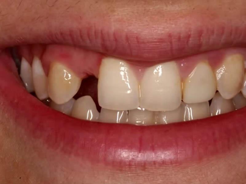 Gubitak zuba