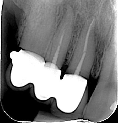 Endodoncija prije
